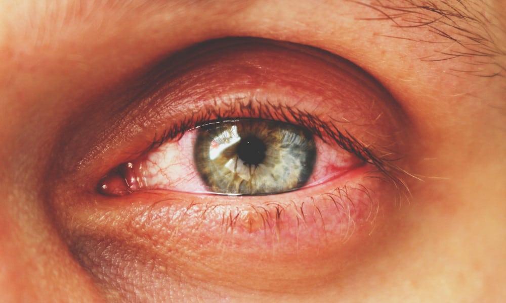 why weed make red eyes